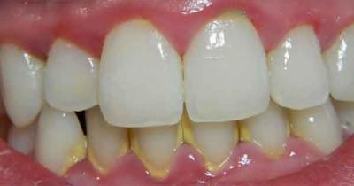 ¿Qué es el sarro dental?
